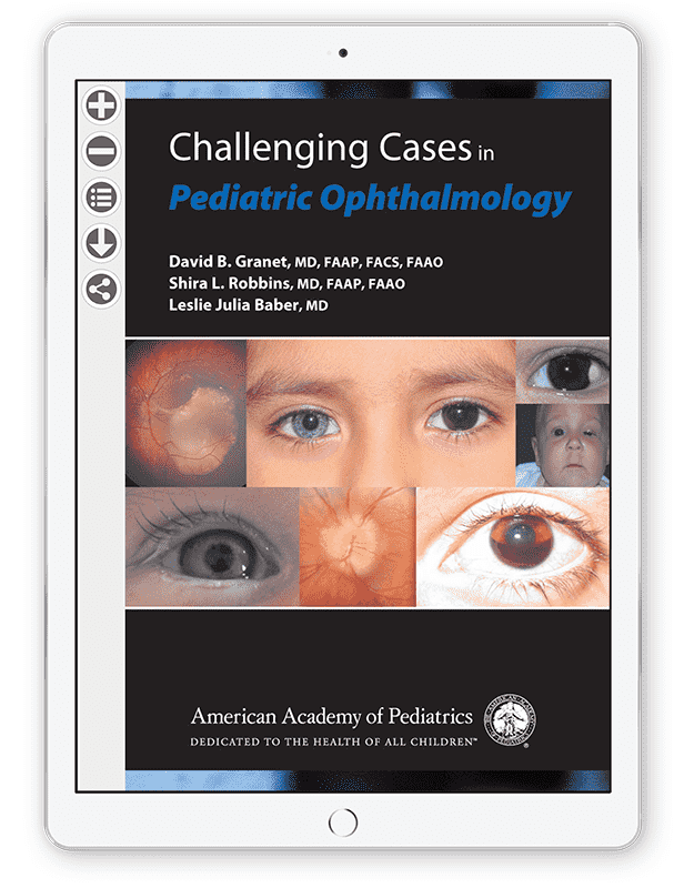 Challenging Cases in Pediatric Ophthalmology [eBook] - AAP